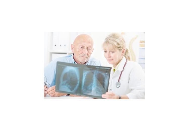 Plicní fibróza