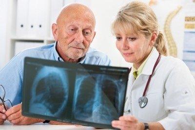 Zápal plic (pneumonie): příčiny, projevy, léčba a diagnostika