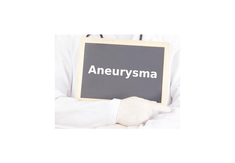 Aneurysma: dělení, diagnostika, rizikové faktory a léčba