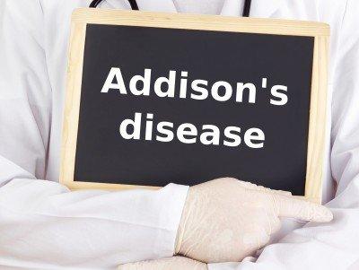 Addisonova choroba: príznaky, prejavy, diagnostika a liečba