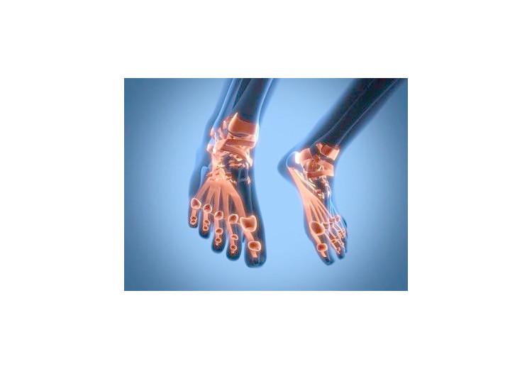Pagetova choroba: příčiny, příznaky, diagnostika a léčba