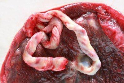 Eklampsie: příčiny, projevy, diagnostika a léčba