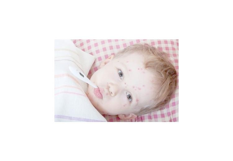 Plané neštovice: příčiny, projevy, diagnostika a léčba