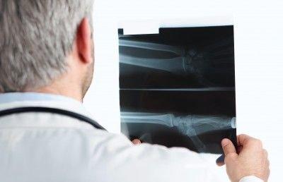 Ewingův sarkom: příčiny, příznaky, diagnostika a léčba