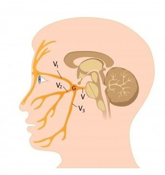Neuralgia trojklanného nervu: príčiny, príznaky, diagnostika a liečba