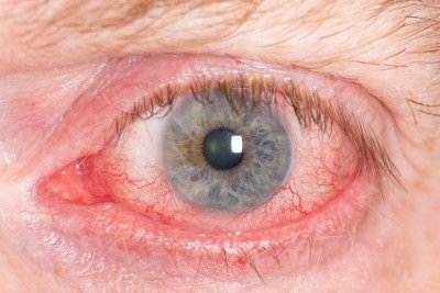 Zánět spojivek (konjunktivitida): příčiny, příznaky, diagnostika a léčba