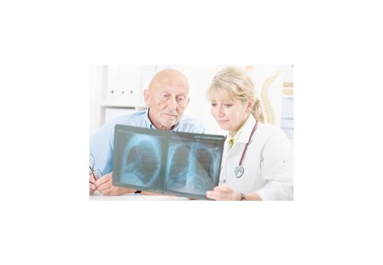 Pneumokonióza: příčiny, příznaky, diagnostika a léčba
