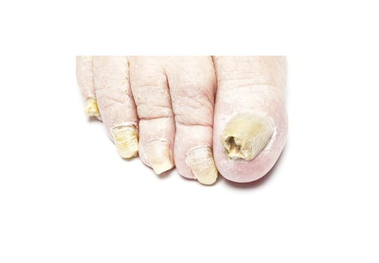 Tinea pedis: příčiny, příznaky, diagnostika a léčba