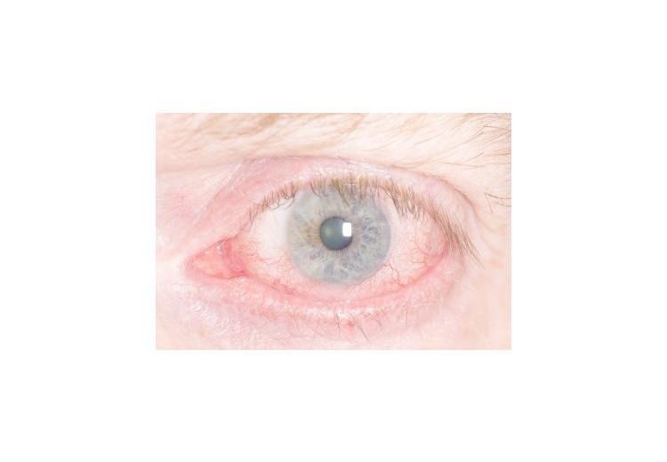 Zánět oční rohovky: příčiny, příznaky, diagnostika a léčba