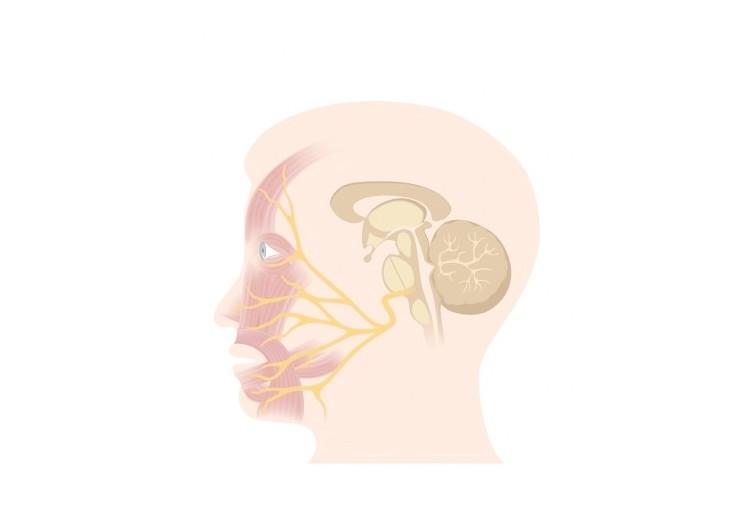 Obrna lícního nervu: příčiny, příznaky, diagnostika a léčba
