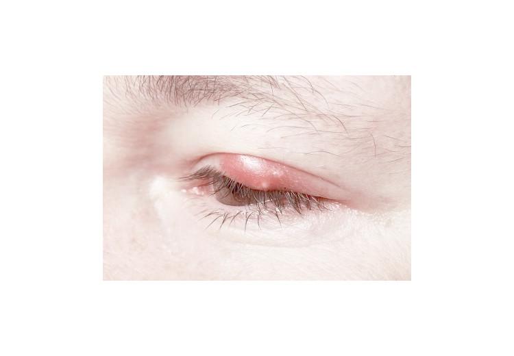 Vlčie zrno: príčiny, príznaky, diagnostika a liečba