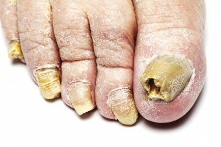Tinea pedis: príčiny, príznaky, diagnostika a liečba
