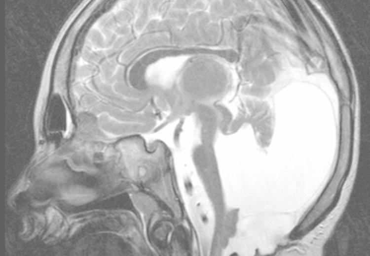 Dandy–Walkerův syndrom a malformace: příčiny, příznaky, diagnostika a léčba
