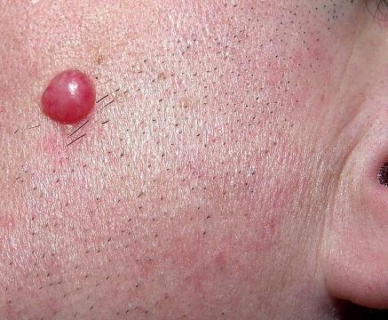 Lymfocytom při borelióze