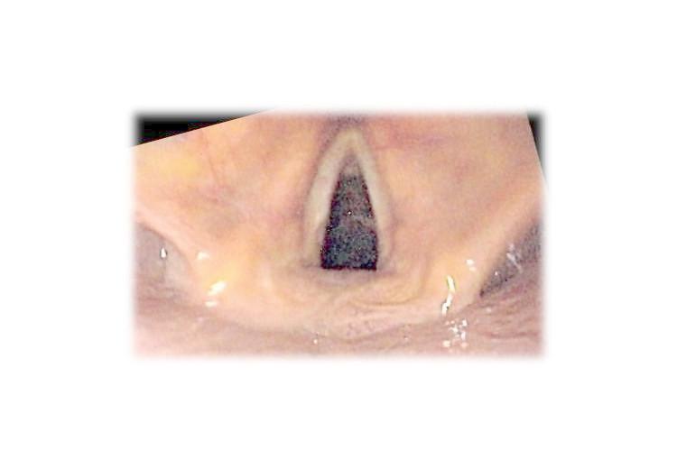 Laryngitída: príčiny, príznaky, diagnostika a liečba