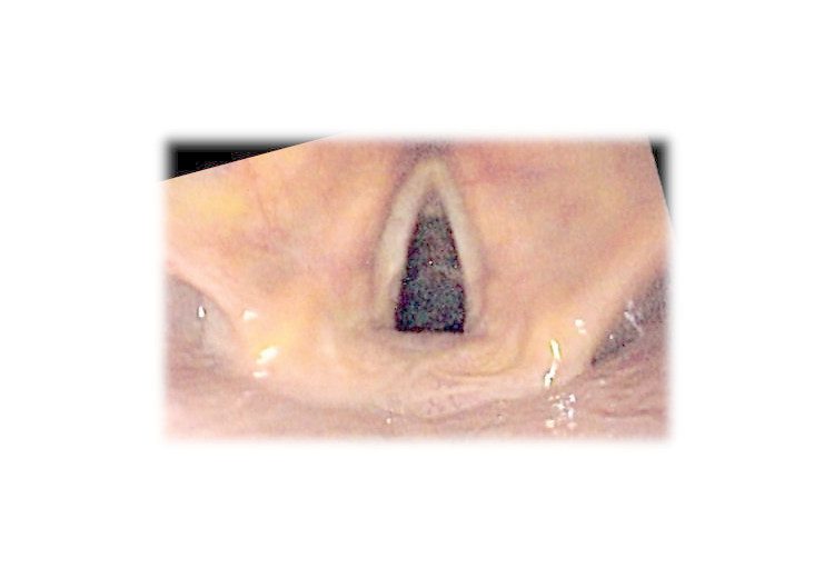 Laryngitida: příčiny, příznaky, diagnostika a léčba