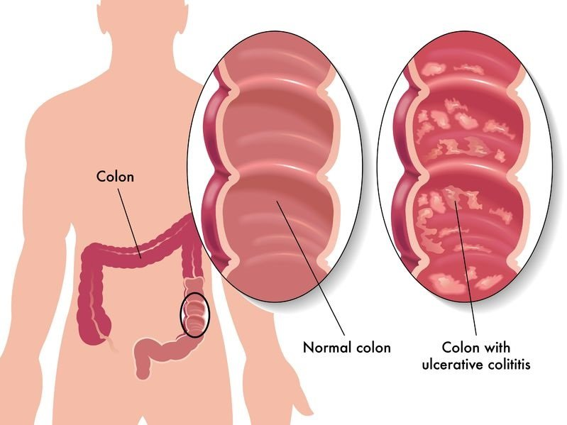 Ulcerative colitis: causes, symptoms, diagnosis and treatment