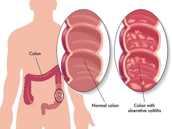 Ulcerative colitis explained
