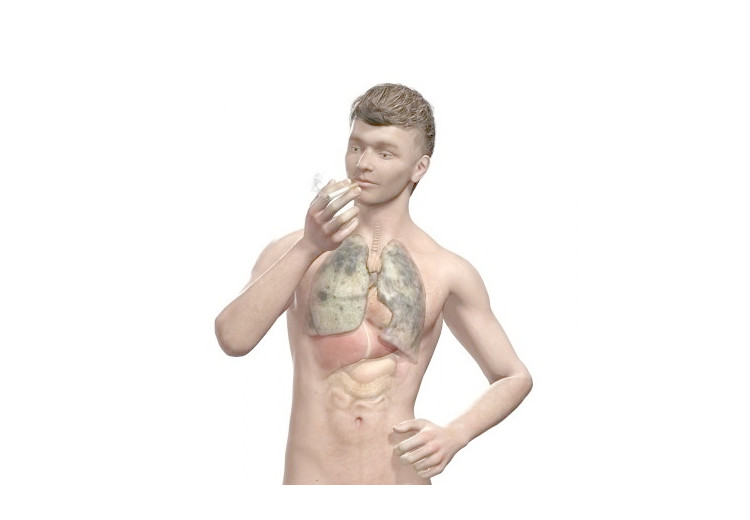 Emfyzém pľúc: príčiny, príznaky, diagnostika a liečba