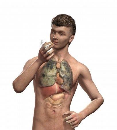 Plicní emfyzém: příčiny, příznaky, diagnostika a léčba