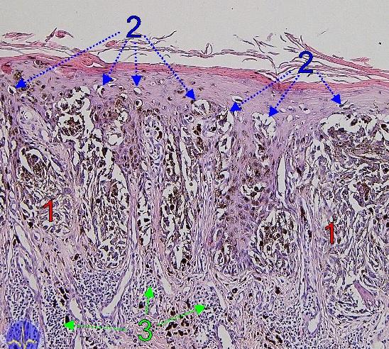 Histopatologická diagnostika 2