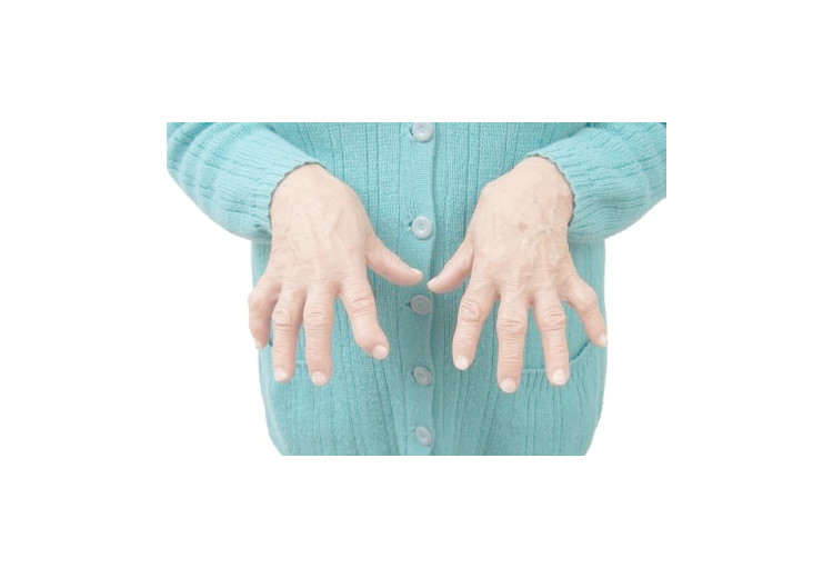 Rheumatoid arthritis: causes, symptoms, treatment and complications