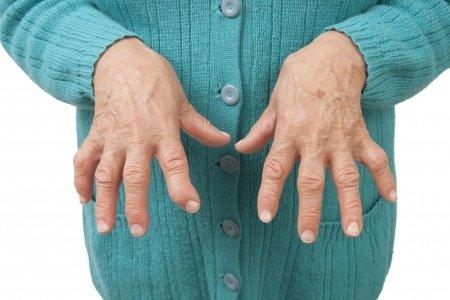 How doctors diagnose Rheumatoid Arthritis (RA)