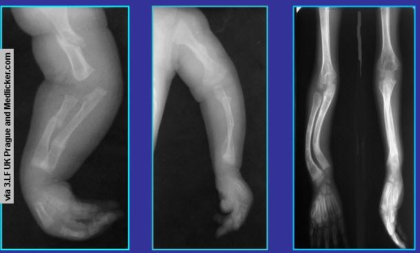 Figure 1 - Radiology
