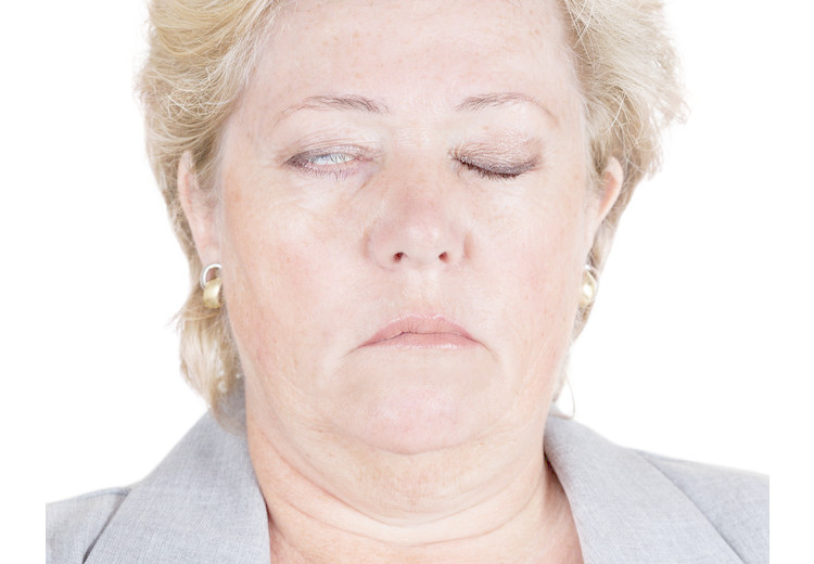 All you need to know about facial nerve palsy
