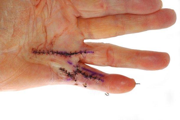 Dupuytrenova kontraktura: příčiny, příznaky, diagnostika a léčba