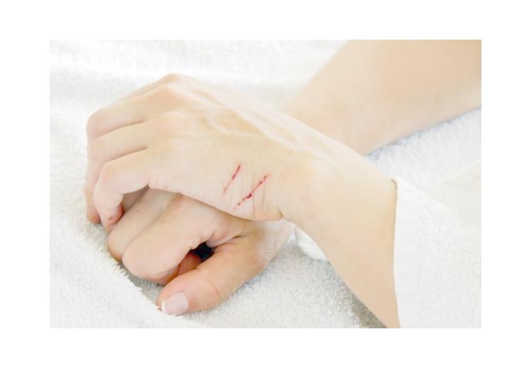 Maladie des griffes du chat: causes, symptômes, diagnostic et traitement