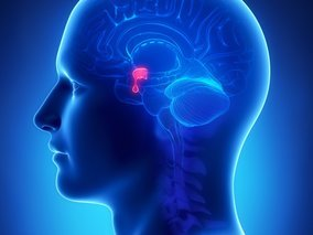 Akromegália: príčiny, príznaky, diagnostika a liečba