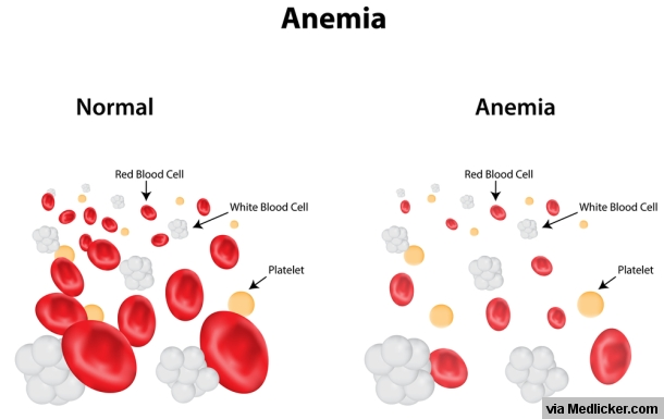 Iron Deficiency Anemia Explained in an Easy Way