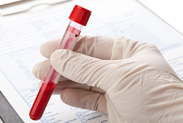 Blood sample vial for zinc testing in gloved hand