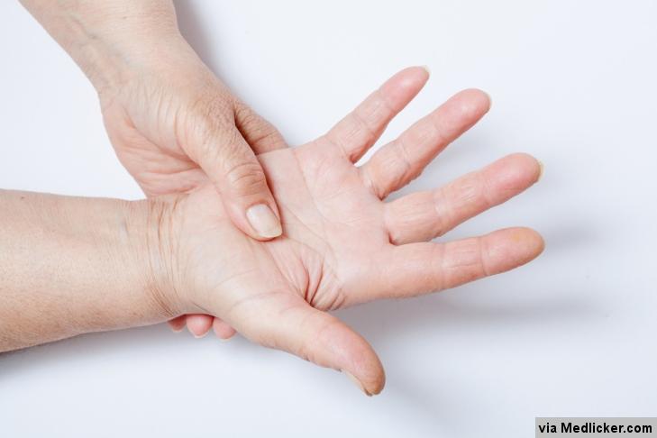 Fibromyalgie se může projevit i bolestí dlaně