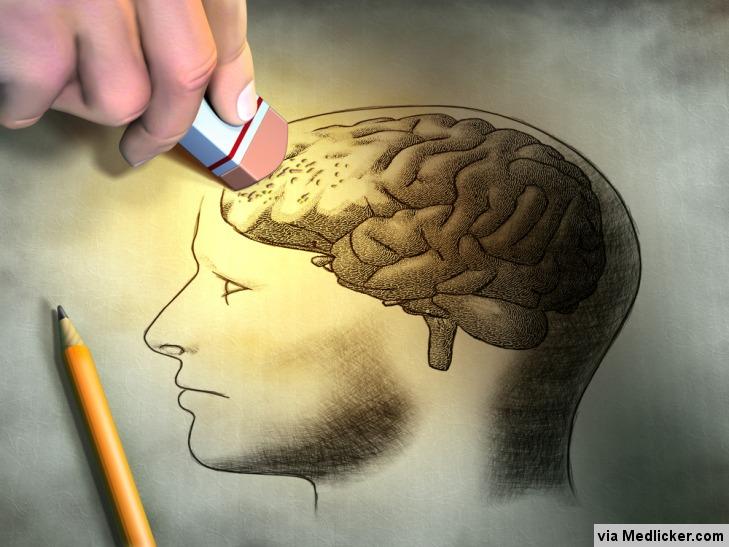 Probleme de memoire medicament