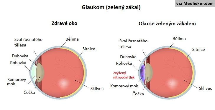 Glaukom - zelený zákal - obecná příčina