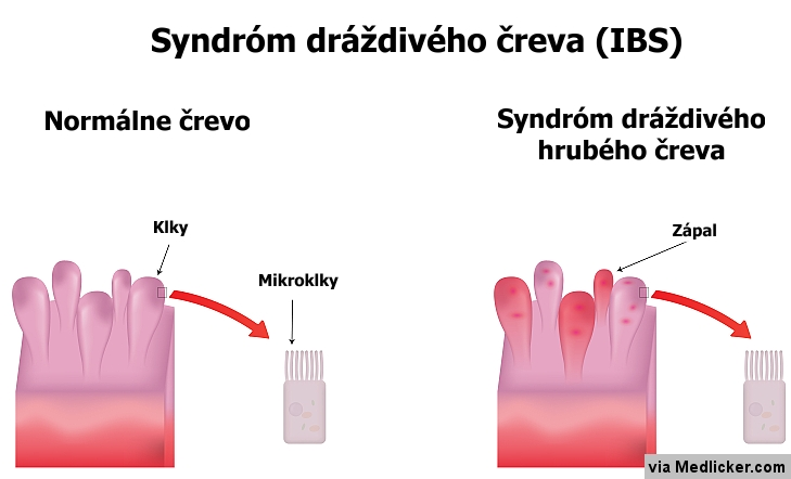 Syndróm dráždivého hrubého čreva