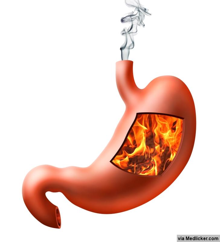 Pálení žáhy (hořící žaludek)