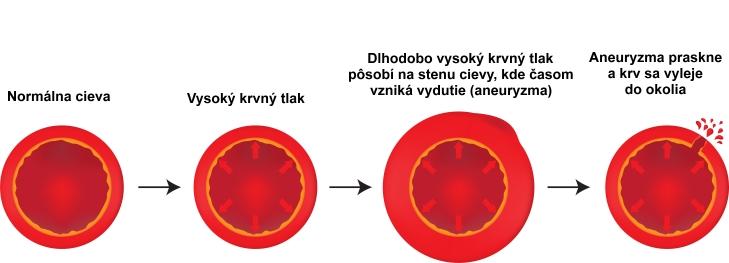 Ako vzniká aneuryzma