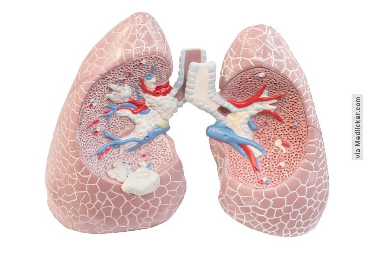 Chronická obstrukční plicní nemoc (CHOPN): příčiny, příznaky, diagnostika, léčba a prevence