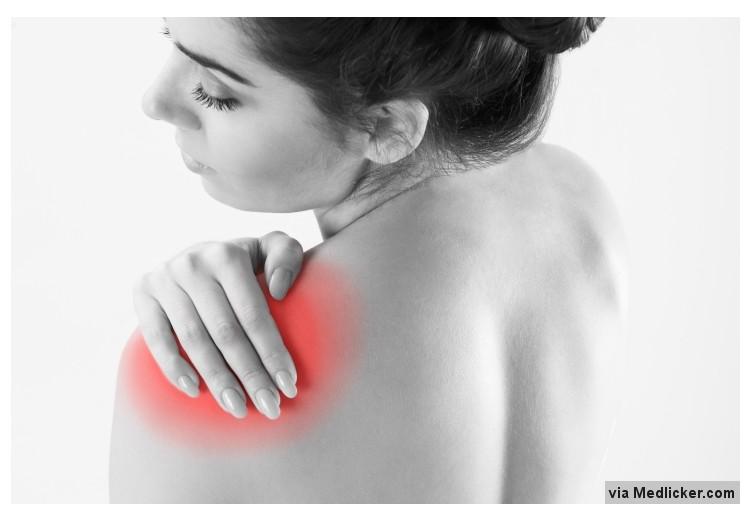 Syndrom zmrzlého ramene: příčiny, příznaky, diagnostika a léčba