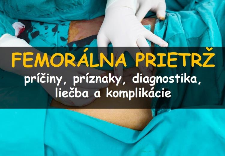 Femorálna hernia (prietrž): príčiny, príznaky, diagnostika a liečba