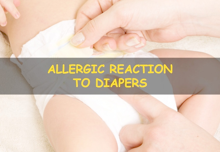 Allergic reaction to diapers