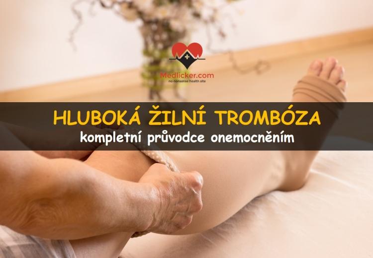 Hluboká žilní trombóza: co to je, jak se projevuje a léčí?