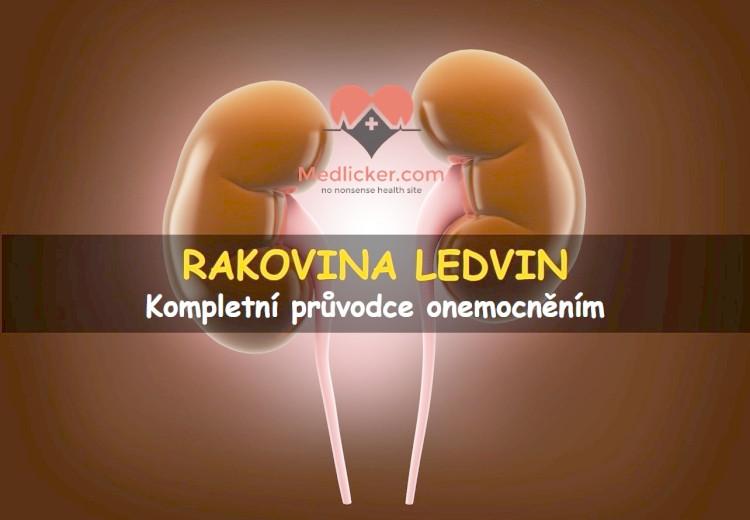 Rakovina ledvin