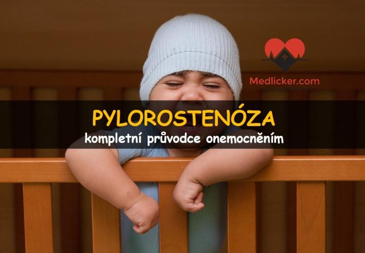 Pylorostenóza (zúžení vrátníku)