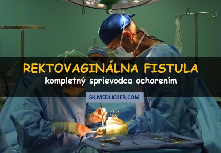 Rektovaginálna fistula