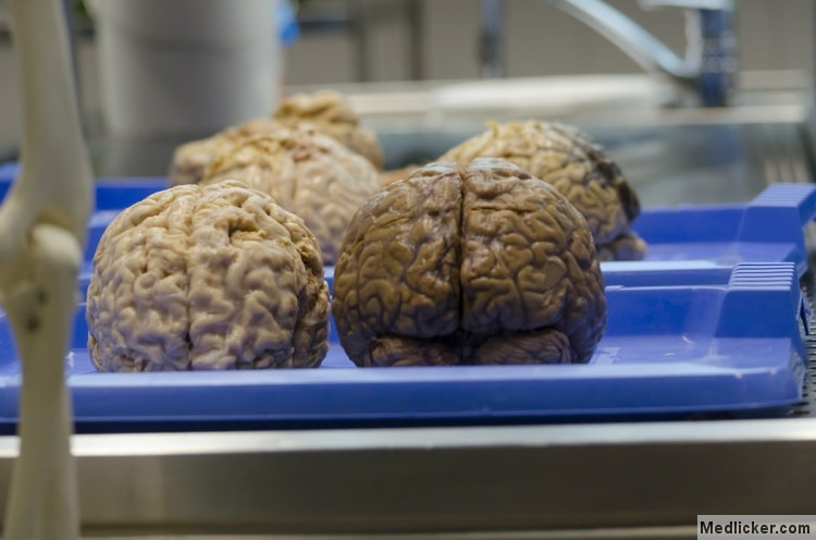 Four brains on a tray