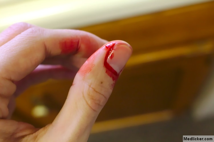finger bleeding